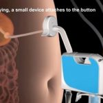 New Weight Loss Device – Now FDA Approved!?